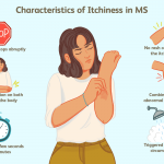 ms symptoms in women
