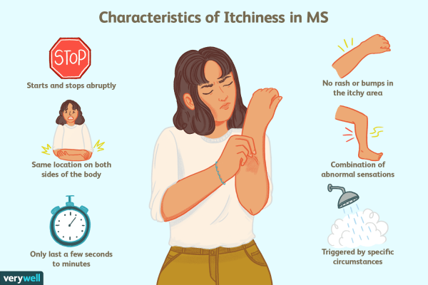 ms symptoms in women