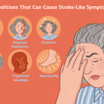 What Causes A Stroke?
