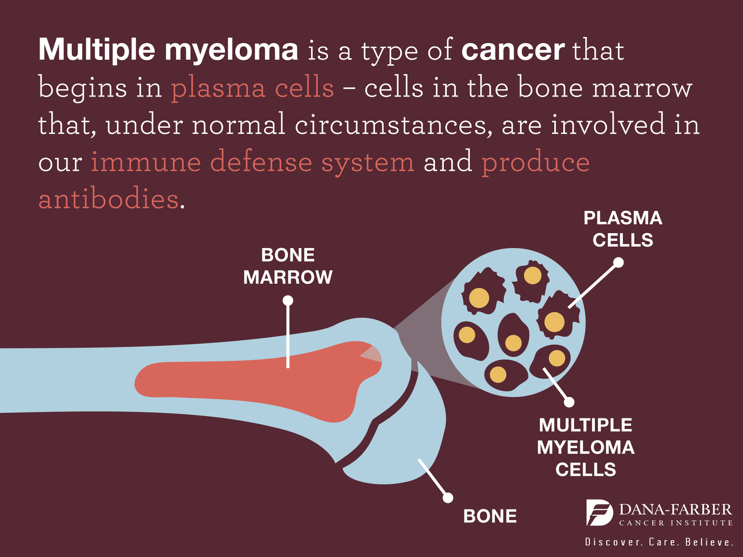 what is multiple myeloma